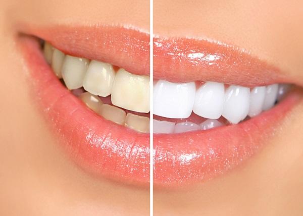 sarı diş